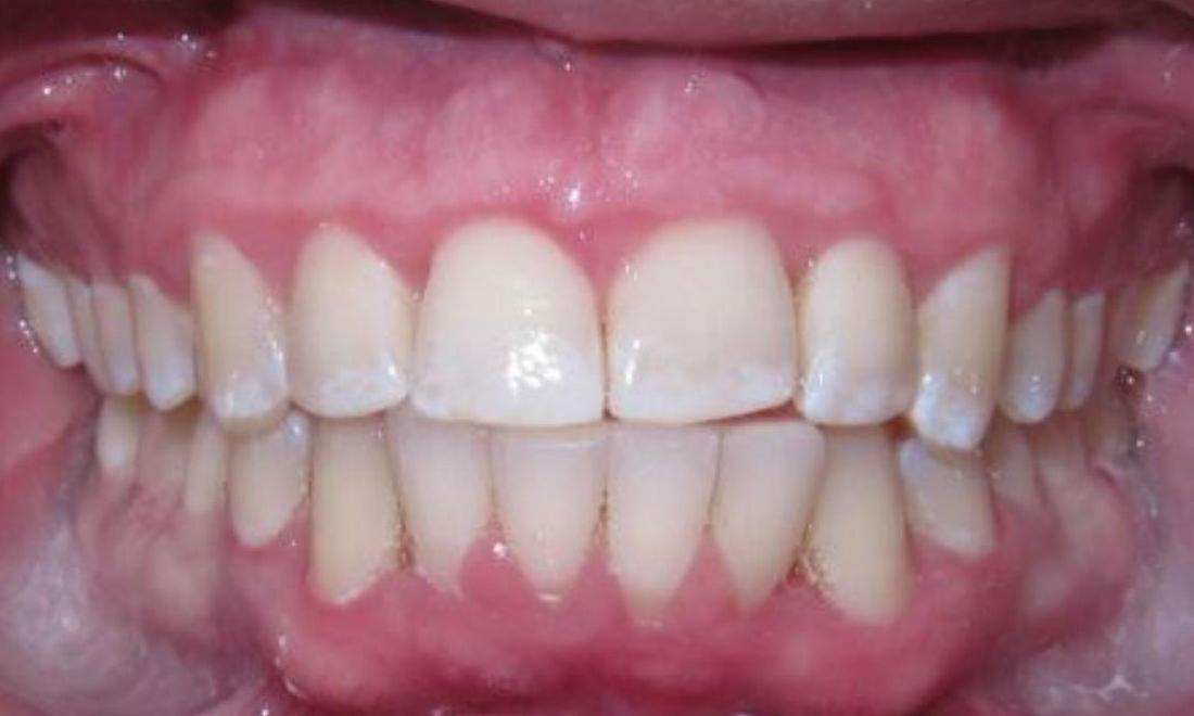 Deep Cleaning and Invisalign