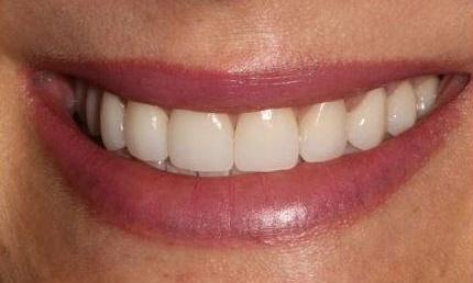 Invisalign-Crown-Lengthening-and-Veneers-After-Image