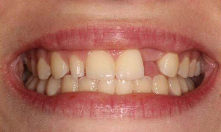 Whitening-Bonding-Maryland-Bridge-Before-Image