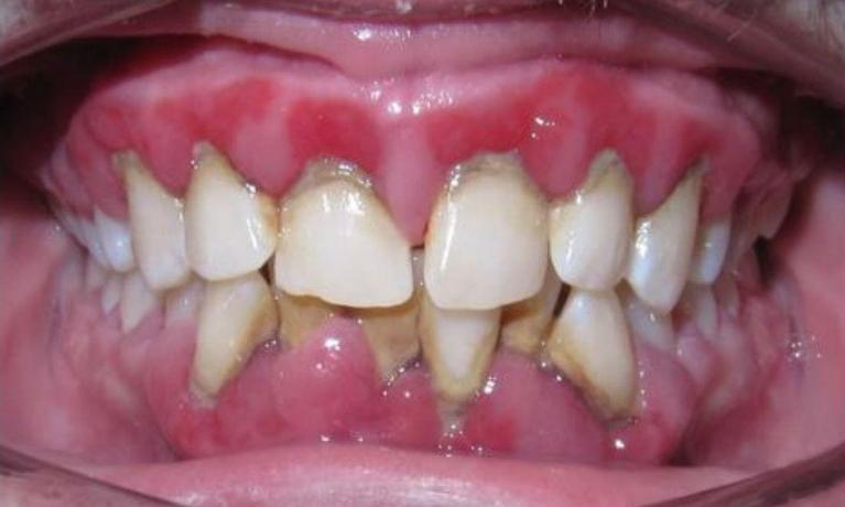 Deep-Cleaning-and-Invisalign-Before-Image