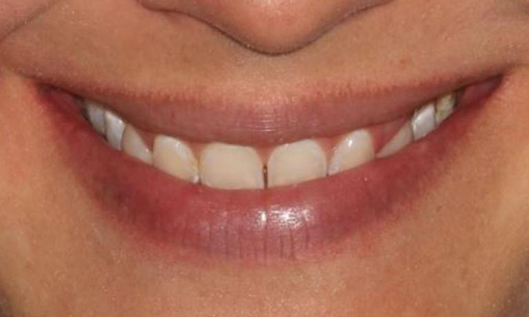 Invisalign-Crown-Lengthening-and-Veneers-Before-Image